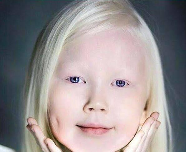 بالصور.. الطفلة الأعجوبة التي سحرت كل من شاهدها!