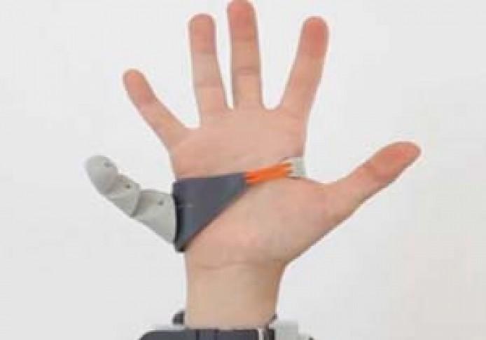 شاهد.. ماذا يحصل لو كان للانسان إصبع سادس في يده؟