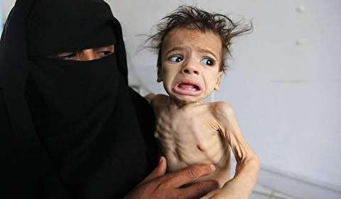 مسؤول أممي: مجاعة محتملة باليمن خلال 6شهور