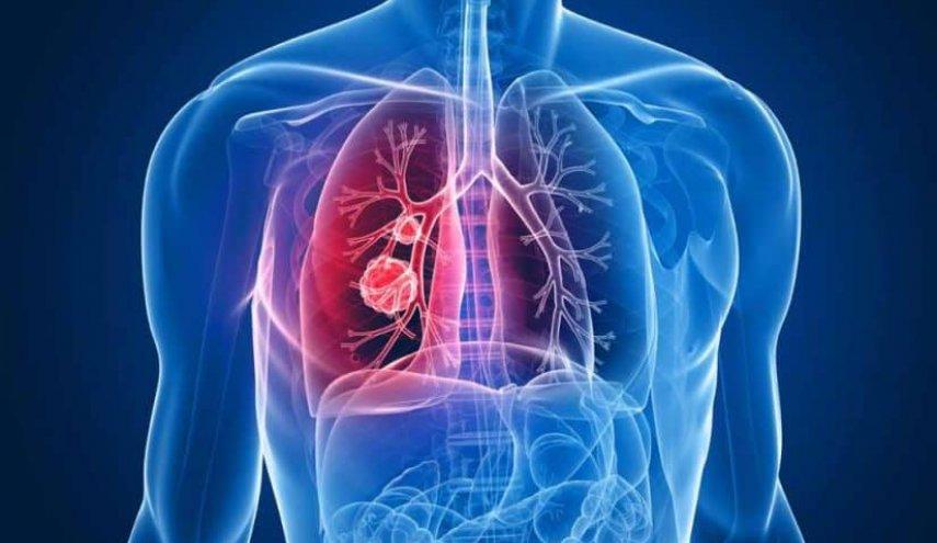 تعرّف على أسباب الالتهاب الرئوي والأعراض وطرق العلاج