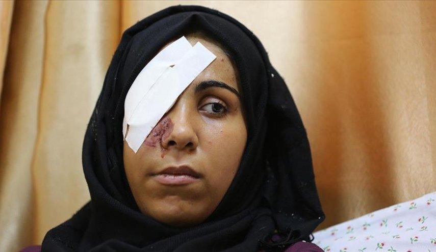 شابة فلسطينية تروي كيف أفقدها الاحتلال عينها؟
