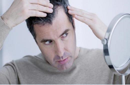 تعرف على عادات خاطئة تسرع ظهور الشعر الأبيض