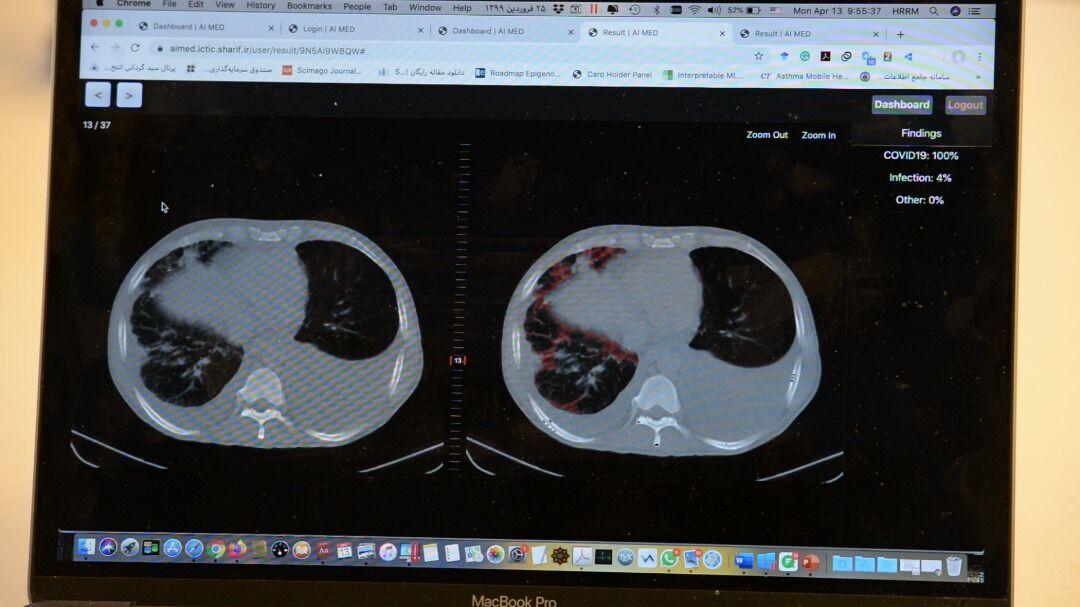 متوفرة مجاناً..منظومة ايرانية رقمية ذكية لتشخيص كوفيد-19