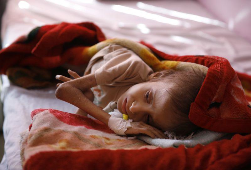 Save the Children says 130 children die every day in Yemen