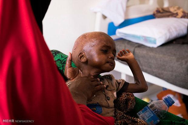 Hunger in Somalia