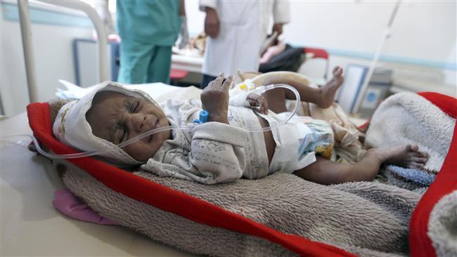 Iran warns of serious famine, starvation in Yemen