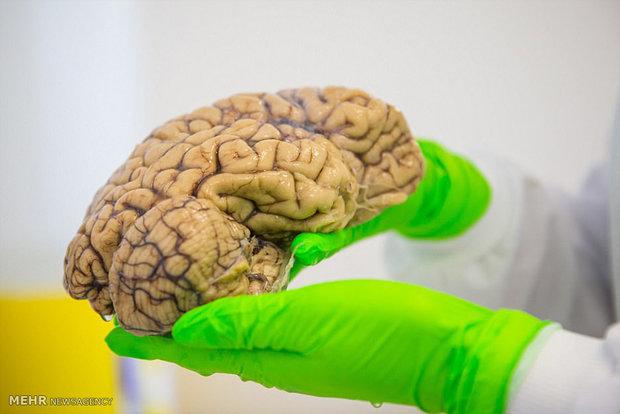 Brain bank in UK