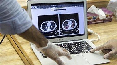 Iran unveils AI-powered coronavirus diagnosis technology