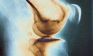 سلول درمانی در آرتروز زانو، نیاز به تعویض مفصل را به تعویق می اندازد