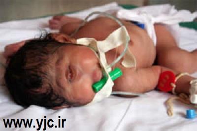 В Индии на свет появился ребенок-циклоп Новости Армении - NEWS.am.