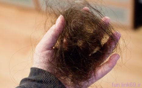 درمان ریزش موی کششی
