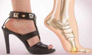 کفش تنگ و پاشنه بلند نپوشید!