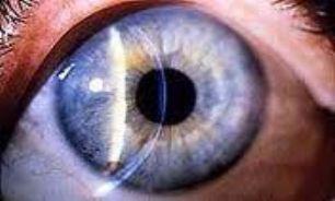 لکه سفید روی چشم نشان دهنده تومور است
