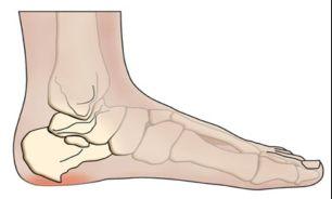 نتیجه تصویری برای علت سرد و یخ بودن مچ و کف پا چیست؟   چرا پاهای من همیشه سرد است؟