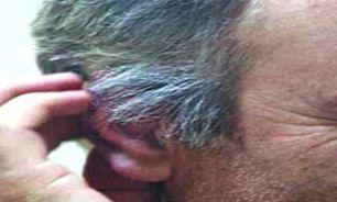 تقویت موهای کرکی سر