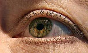دنیای پزشکی و طب سنتی - چروک دور چشم, چروک دور چشم و درمان, چروک دور چشم در جوانی, چروک دور چشم درمان, رفع چروک دور چشم, ماسک چروک دور چشم, درمان چروك دور چشم, کرم چروک دور چشم, برای چروک دور چشم, علت چروک دور چشم