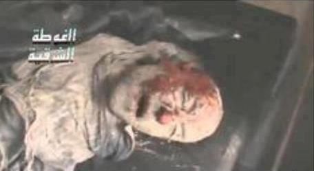 عکس تایید نشده و منسوب به جنازه حجر بن عدی
