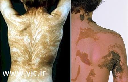 عجیب ترین بیماری های پوستی 1