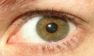 باید و نبایدهای استفاده از کرم دور چشم