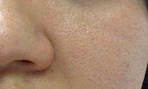 منافذ باز پوستتان را با کرم های جمع کننده بپوشانید