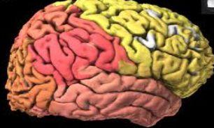 ارتباط بین قطر سر و تومور مغزی