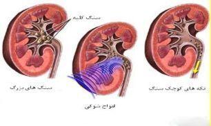 نشانه هایی ناشناخته از بروز بیماری های کلیوی