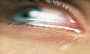 چسبی که چشمان را زیبا می کند