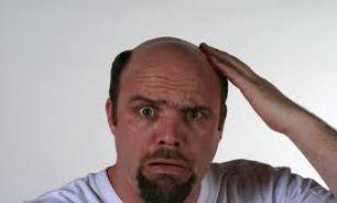 موهایی که بدون مقدمه میریزند!