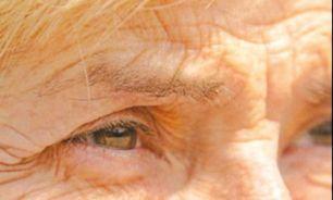 """هورمون """"استرس"""" پوستتان را پیر می کند"""
