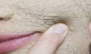 چرا پوست من خشک میشود