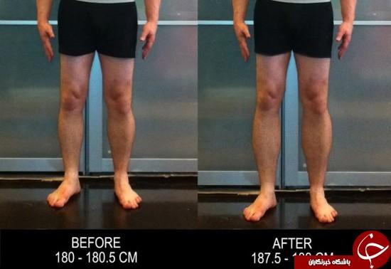 عمل جراحی عجیب برای قدبلند شدن +عکس