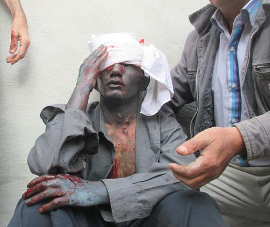 اولین حادثه چهار شنبه سوری در منطقه نعمت اباد رقم خورد/ مجروحیت شدید نوجوان 16 ساله حین ساخت مواد محترقه + عکس