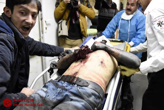 تصاویر دیده نشده از حوادث چهارشنبه آخر سال/ پوست کندن دست آسیبدیده + فیلم