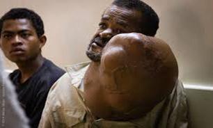 تومور غولآسا پیرمرد ماداگاسکاری را به زیر تیغ جراحی کشاند + تصاویر
