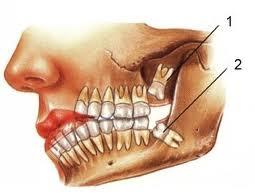 چرا دندان از ریشه خراب میشود