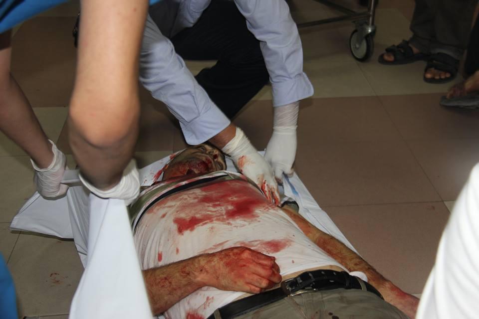 812 شهید و 5244 زخمی در تجاوز به غزه