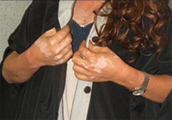 دستگیری در اصفهان/ نشانه های مشکوک به اسید پاشی روی دست های مرد زن نما+عکس ها