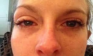 لنز آلوده چشم این زن را به اندازه یک توپ متورم کرد + تصاویر