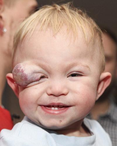 خال مادرزادی بر روی چشم کودک نوپای انگلیسی + تصاویر