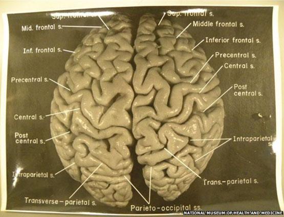 پرونده سرقت مغز آلبرت انیشتین هنوز مفتوح است