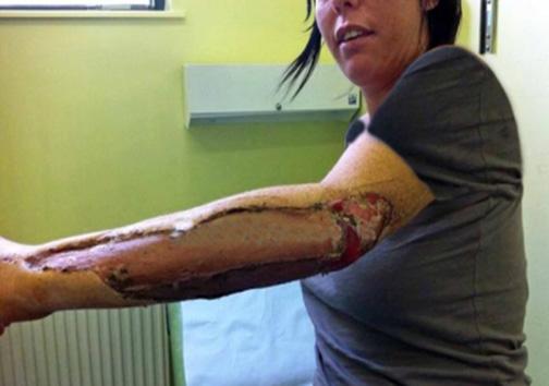 باکتری که قربانیاش را زندهزنده میخورد! + تصویر