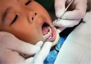 بیش از 380 هزار نفر ،تحت پوشش طرح دندانپزشک خانواده