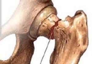 پوکی استخوان شایعترین بیماری در سالمندان قزوینی