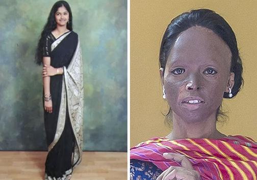 قربانی اسیدپاشی در هند مانکن می شود + تصاویر