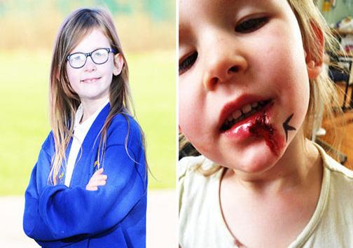 دختری که هیچوقت گرسنگی، درد و خستگی را احساس نمیکند! + تصاویر