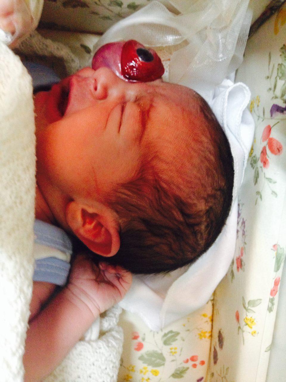 کودکی که باچشم از حدقه بیرون زده متولد شد فردا مرخص می شود + تصاویر