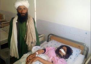 مرد افغان بینی زنش را برید!