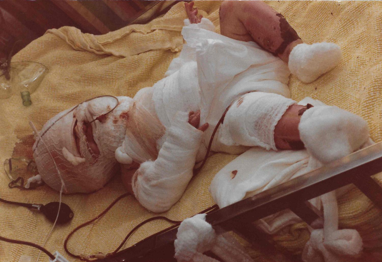 نجات شگفتانگیز نوزاداز روغن داغ
