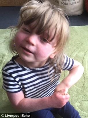 دختری با لکههای بنفش