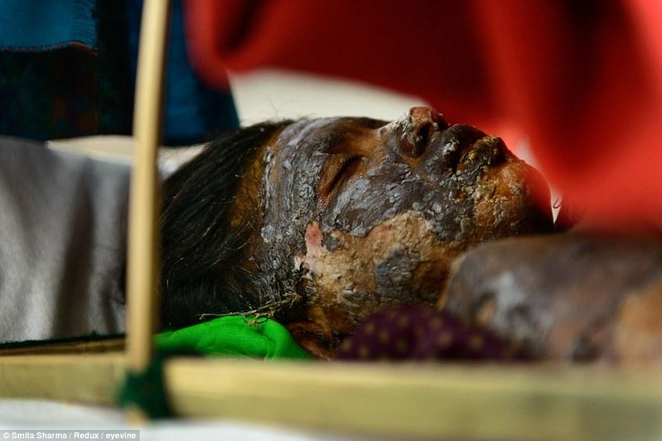 متجاوزان دختر بیپناه را زنده زنده سوزاندن او